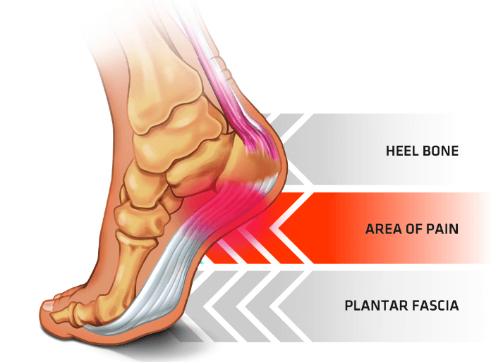 plantar fasciitis image showing pain in the heel from Progressive Integrated Healthcare