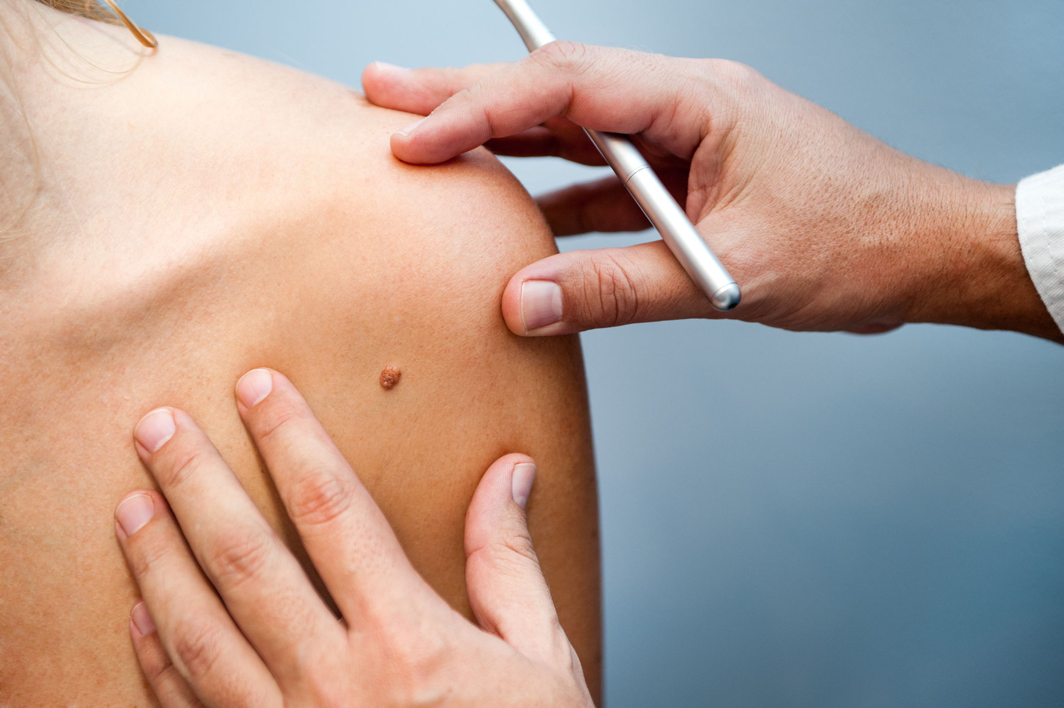 Have You Had a Skin Checkup Lately?