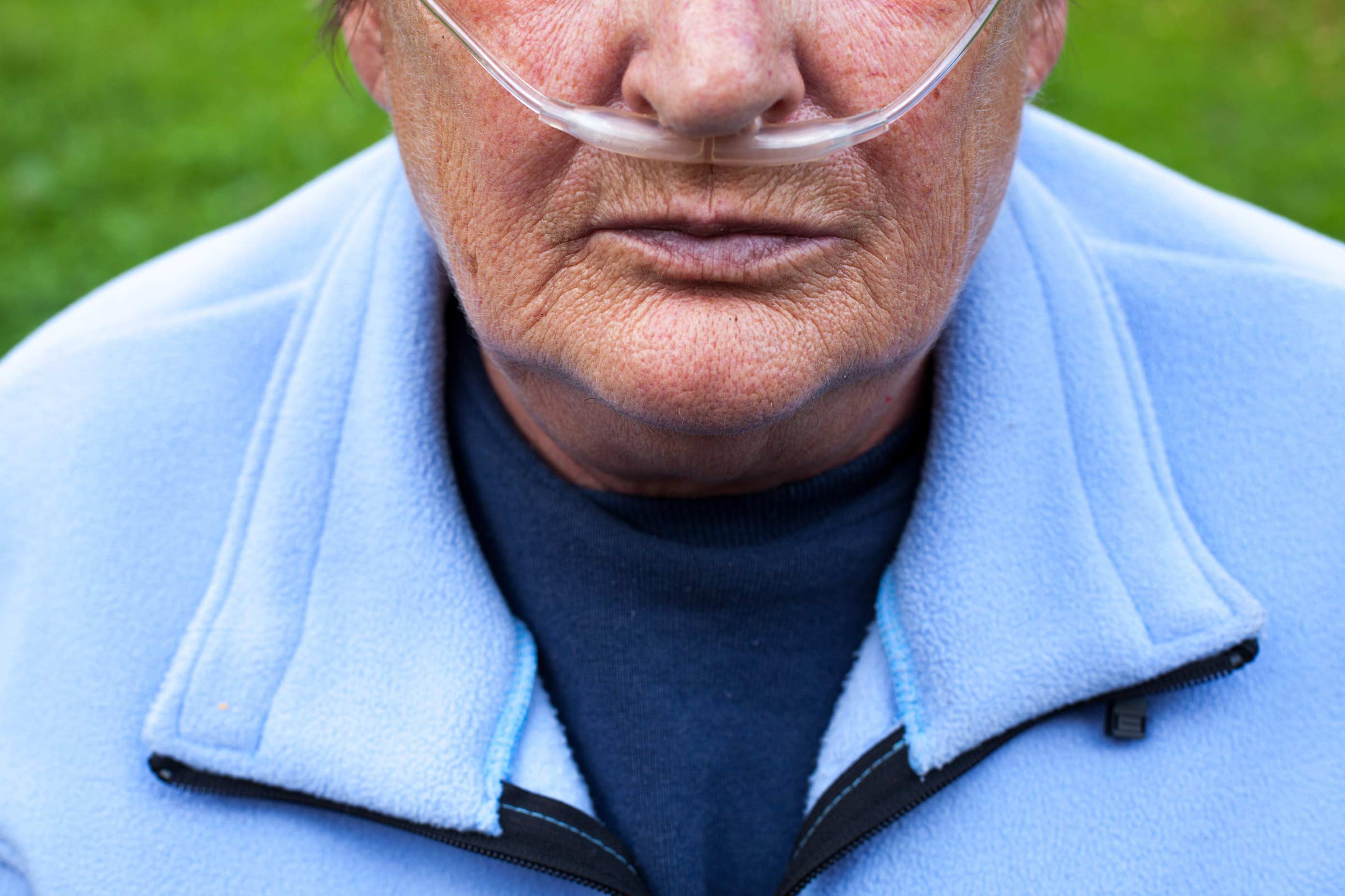Living with Pulmonary Fibrosis